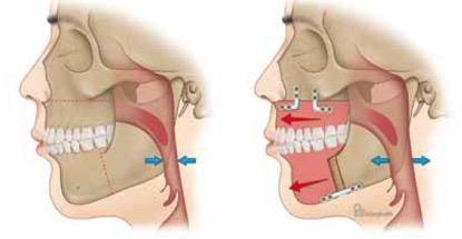 10) Χειρουργική αντιμετώπιση του ροχαλητού