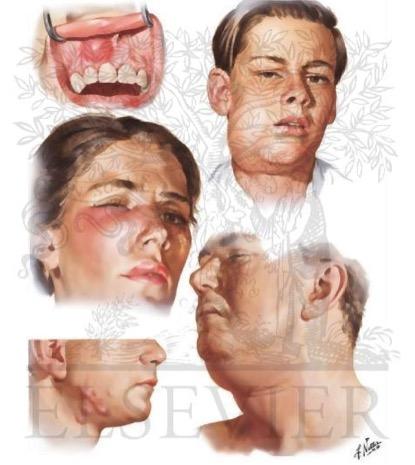 Στοματοπροσωπικές-Τραχηλοπροσωπικές λοιμώξεις
