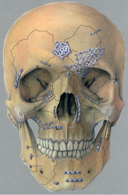 Traumatology of the viscerocranium