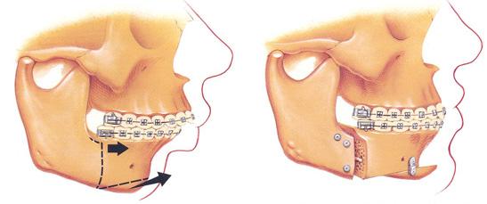 Ορθογναθική χειρουργική